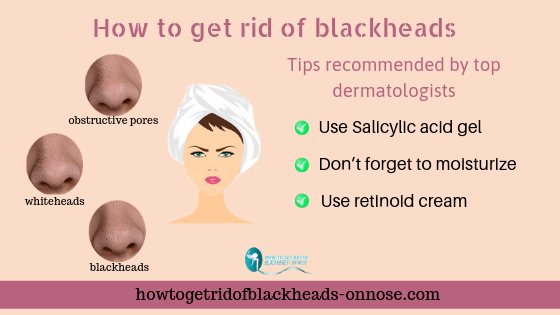 Tips recommended by top dermatologists to get rid of blackheads.